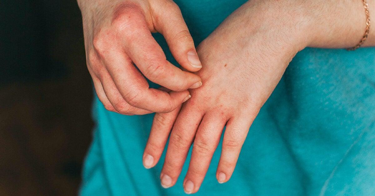 eczema vs psoriasis in babies)
