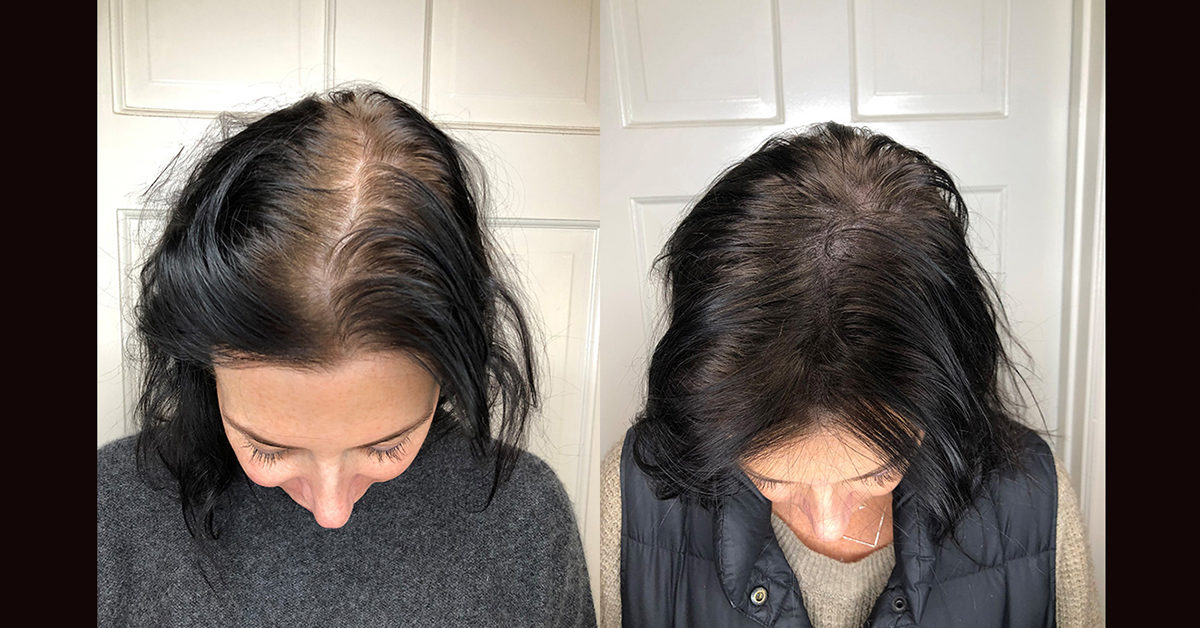 Scalp Micropigmentation Benefits Side Effects Before After Pics