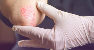 Psoriasis Vs Skin Cancer Pictures Knowing The Signs And More