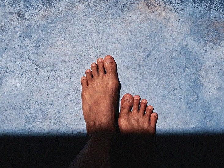 psoriasis on feet burning sensation)