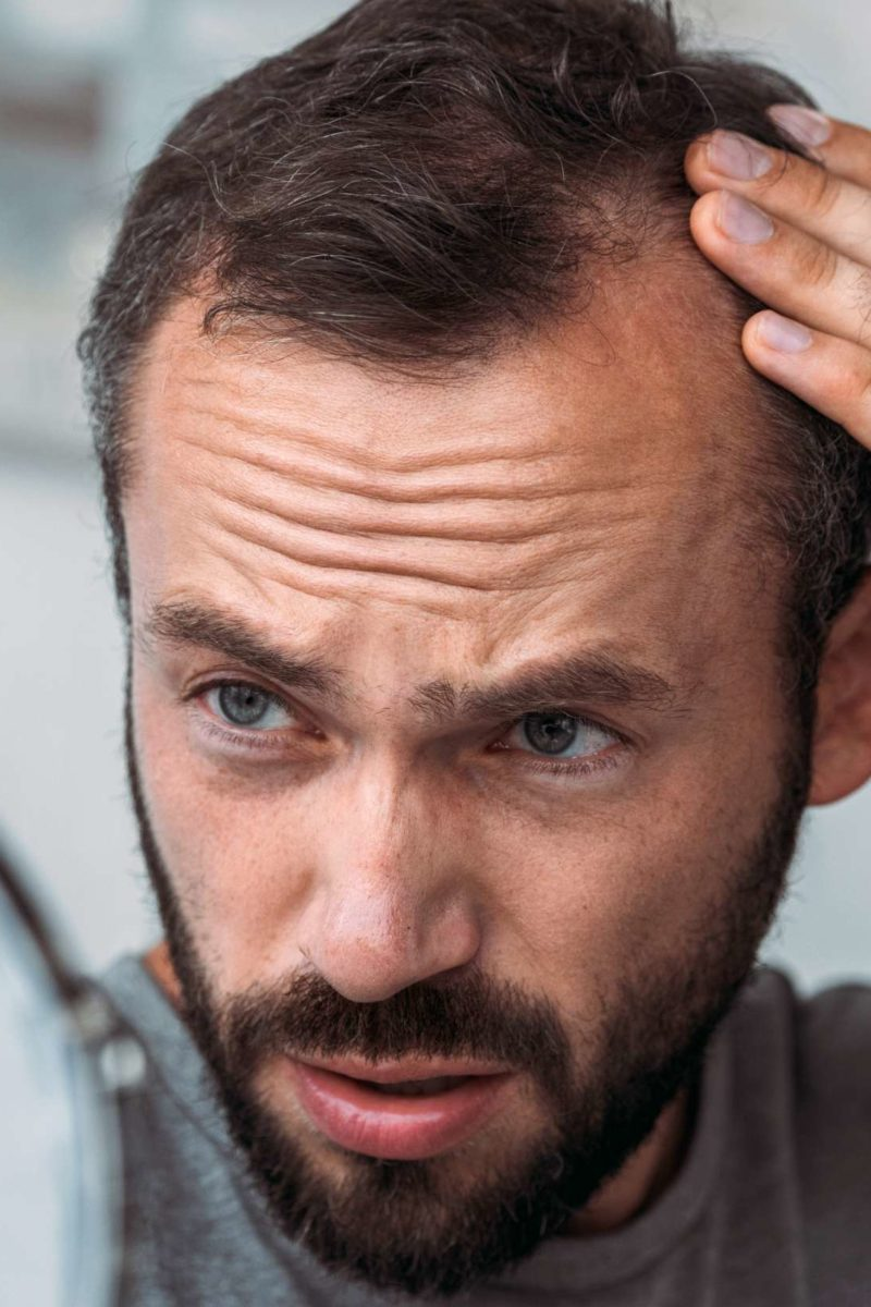 Thyroid And Hair Loss Symptoms Treatment And Outlook