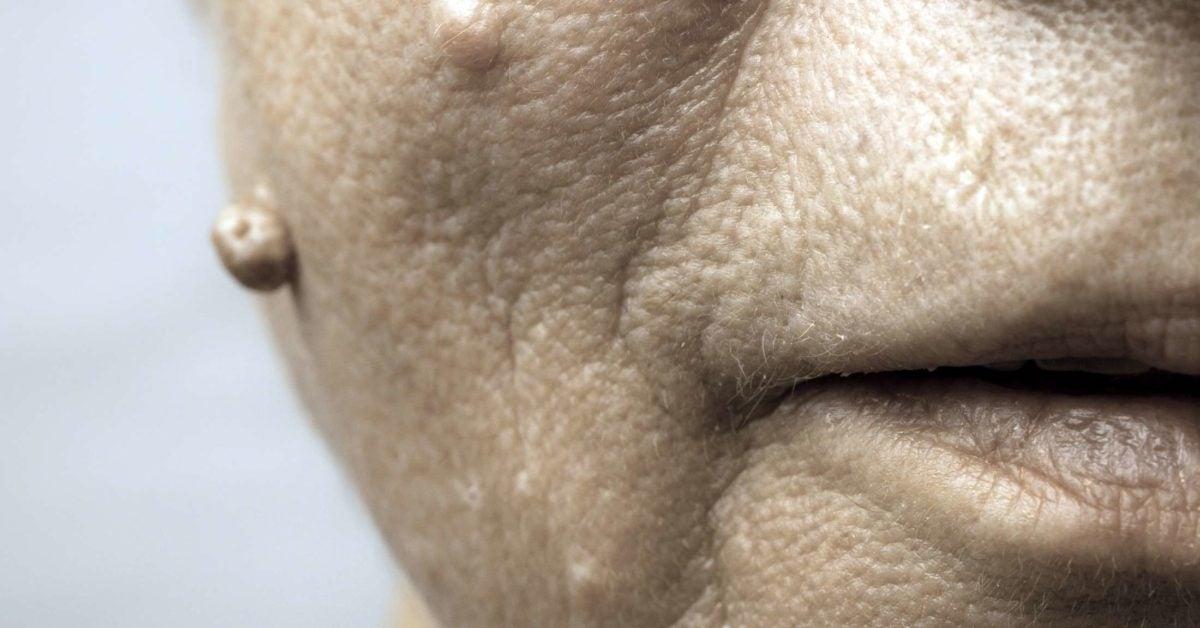 papilloma in face
