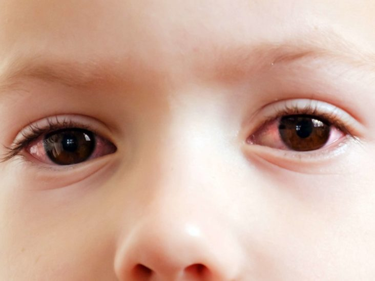 Amblyopia (Lazy Eye) | National Eye Institute