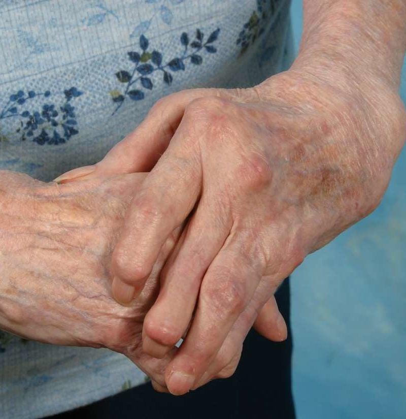 pastile pentru durere în articulațiile coatelor