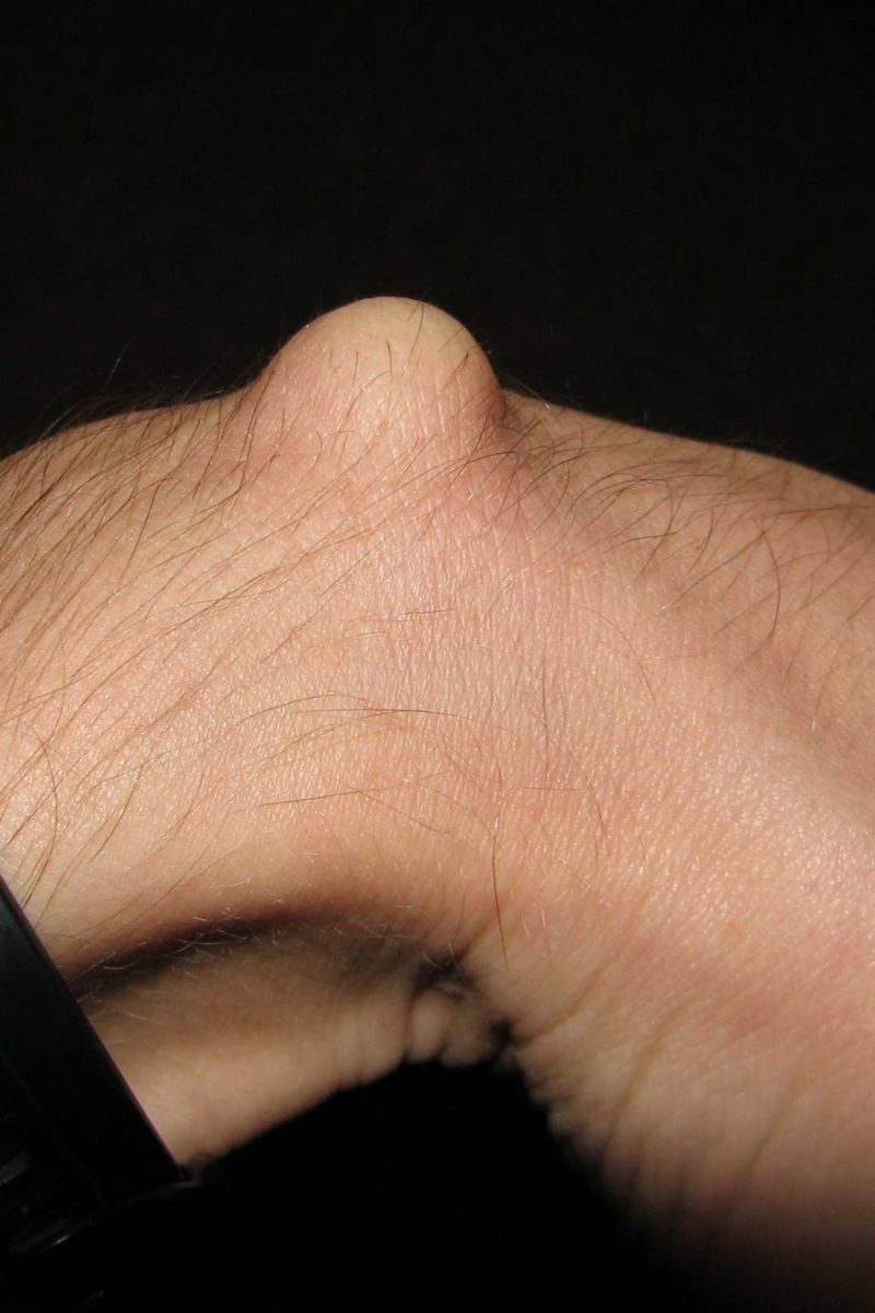 For ganglion cyst on wrist home remedies Ganglion Cyst