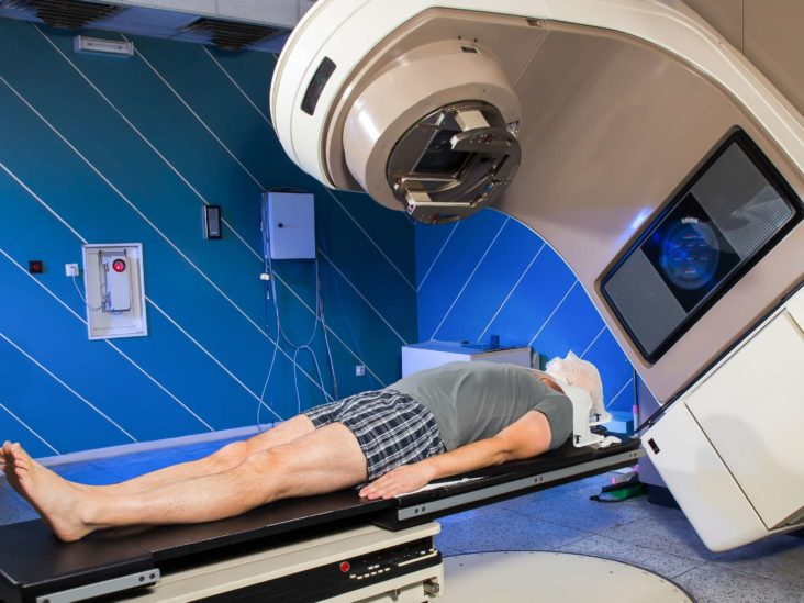 rectal cancer radiation therapy side effects