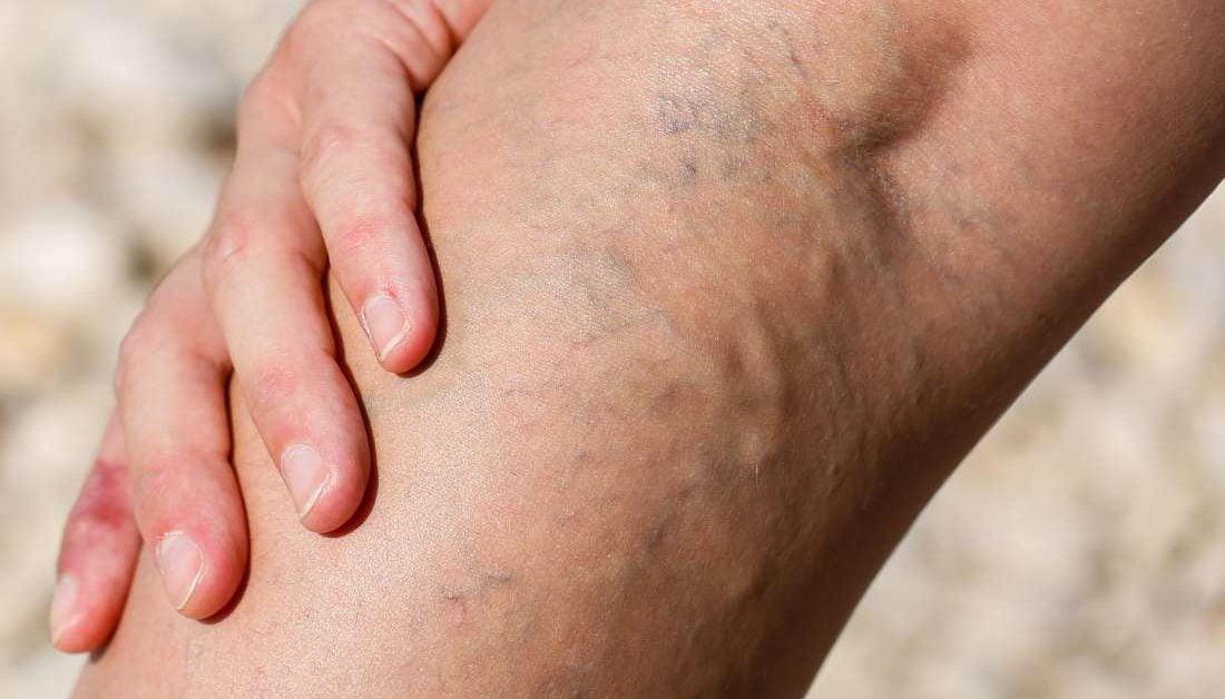 eczema cu picior de varicoză)