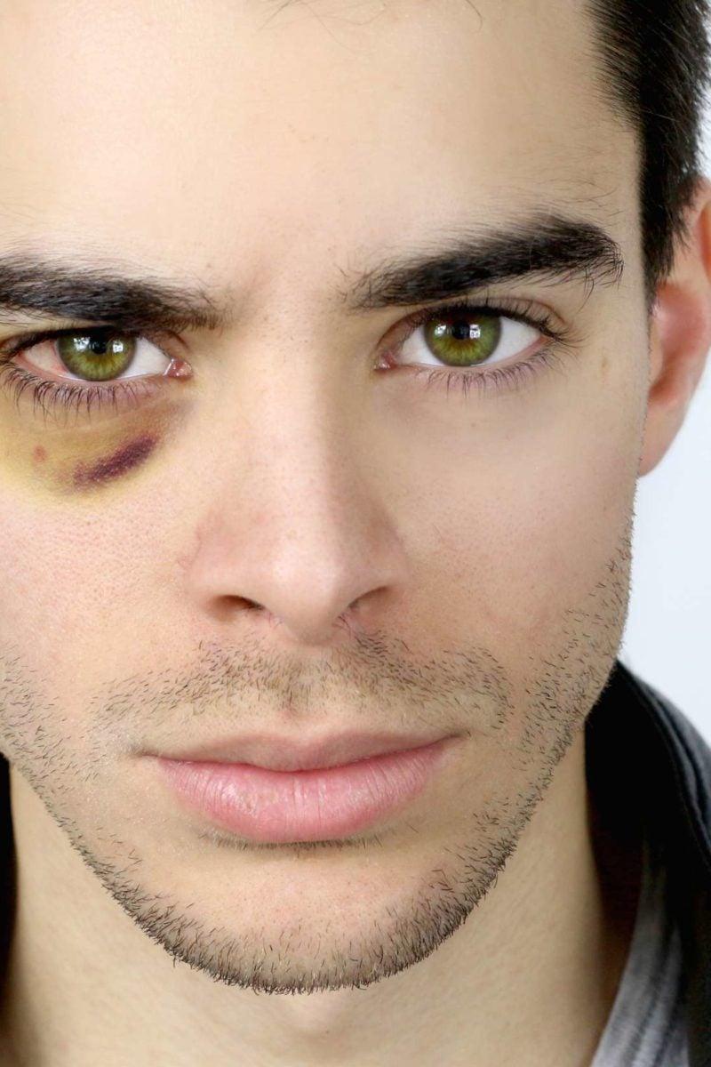 Got a Shiner! | Eye Medical Clinic