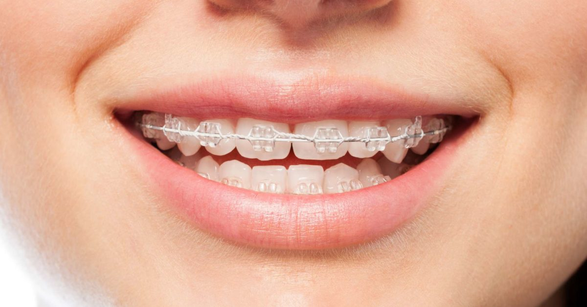 Orthodontics Maloccclusion Other Problems And Starting Treatment