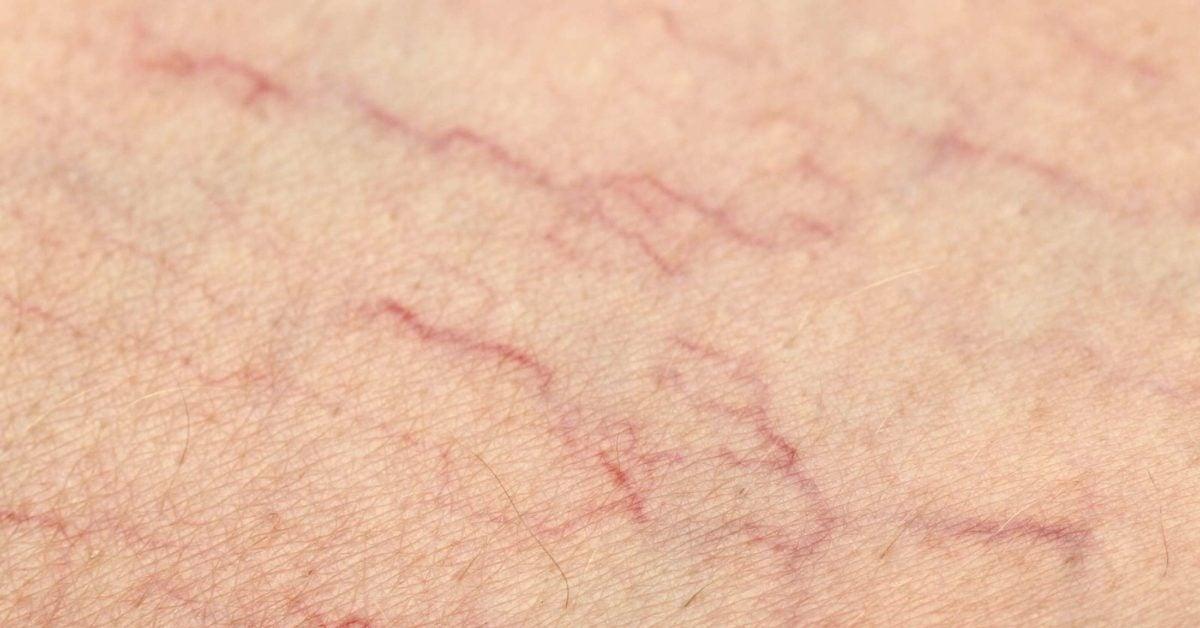 cirrhosis spider veins
