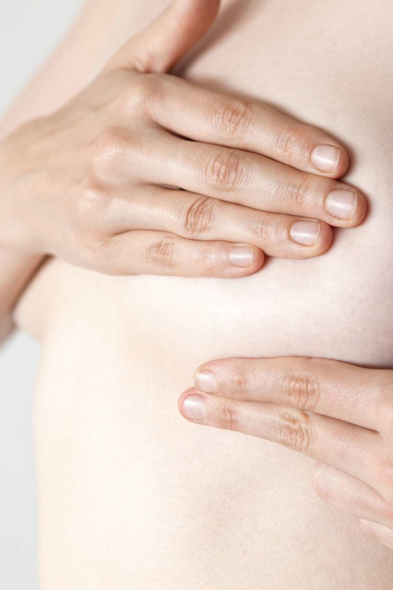 Breast Cancer Dimpling Causes And Treatment
