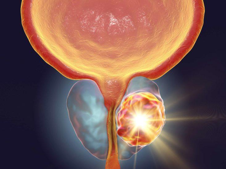 Aggressive cancer prostate