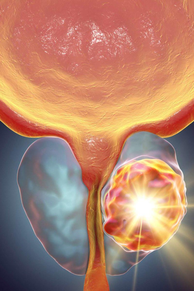 psa cáncer de próstata 4life