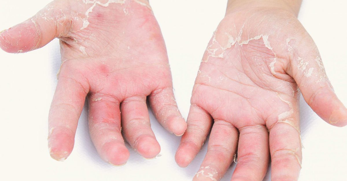 Palmoplantar psoriasis: Causes, symptoms, and treatment