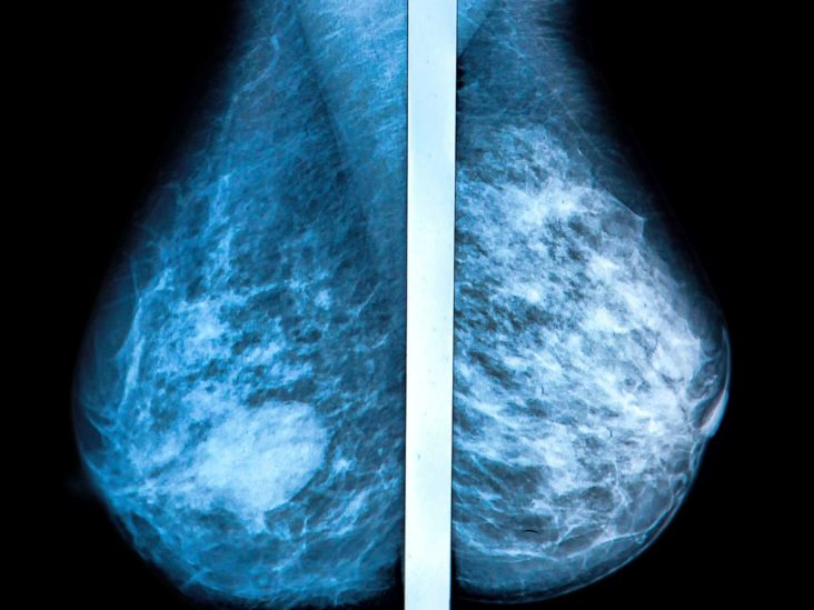 Tomosynthesis Vs Other Screening Methods Benefits And Risks