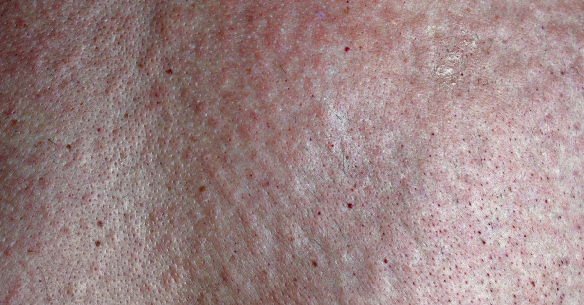 can you develop psoriasis after pregnancy