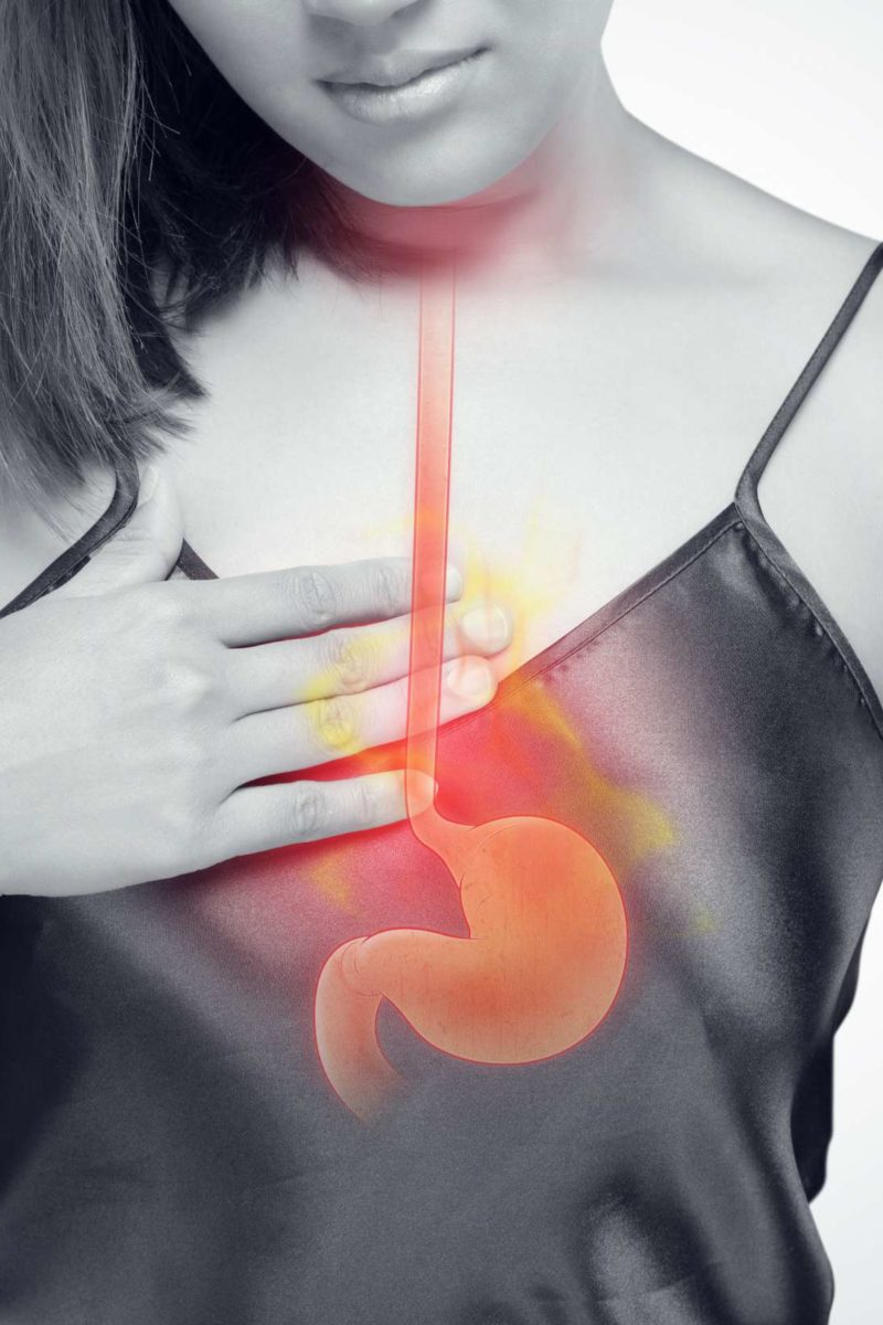 Sore Throat And Acid Reflux Causes And Treatment