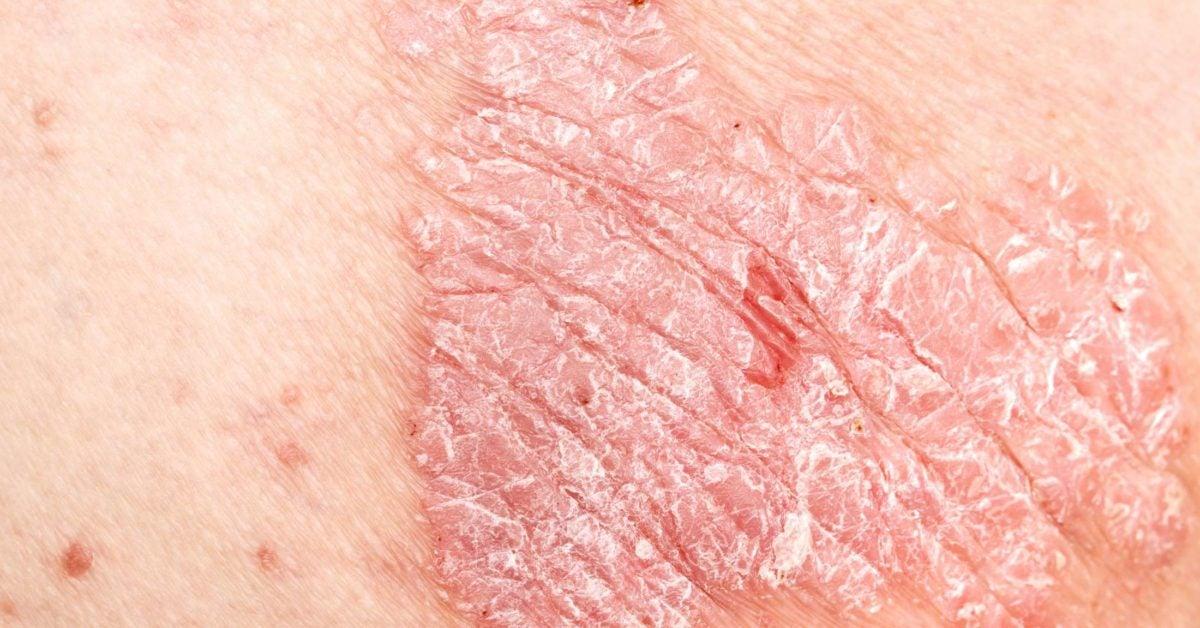 psoriasis burning sensation