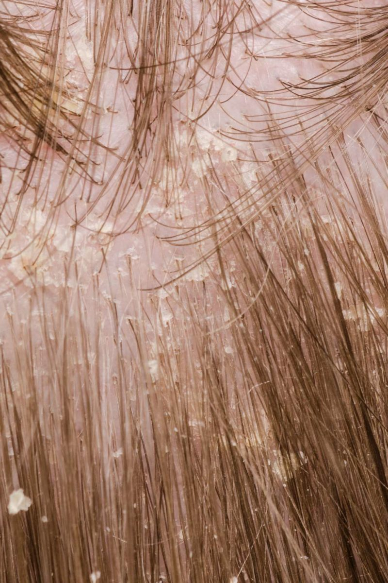 psoriasis scalp flakes)