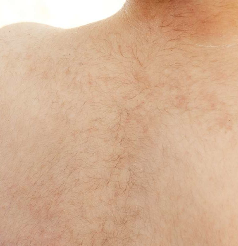 Lanugo Causes Function And Treatment