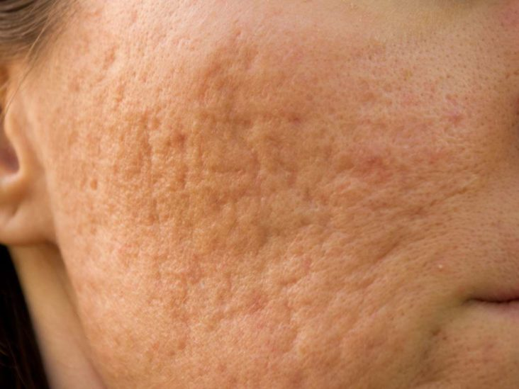 Pockmarks Definition Causes And Treatment