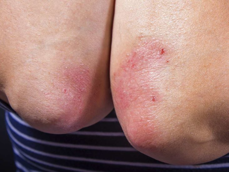 Image result for 6 Common Reasons for the Spread of Psoriasis and How to Prevent The Spread