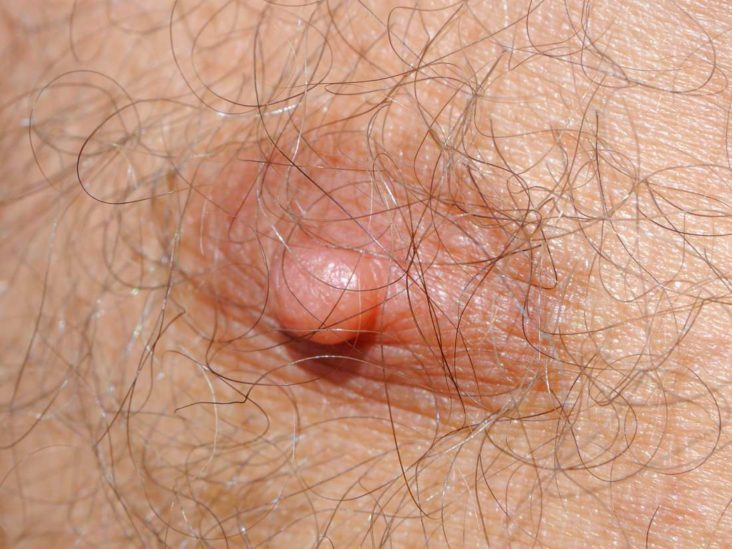Dry Nipples Causes Other Symptoms Treatments And Remedies