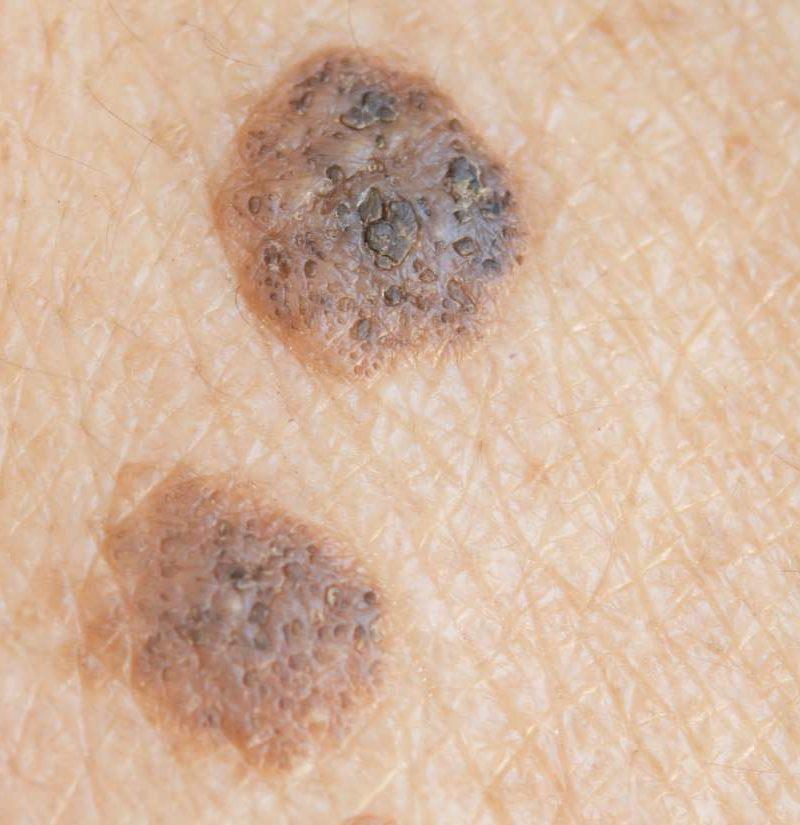 warts skin cancer)