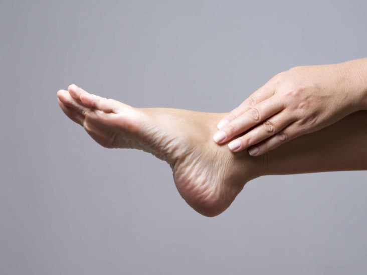 Flat feet: Symptoms, exercises, diagnosis, and treatment