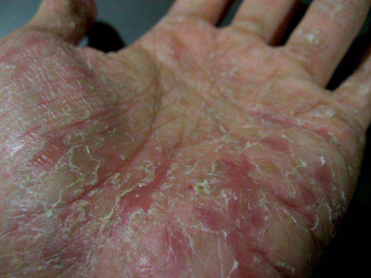 eczema meaning in hindi)