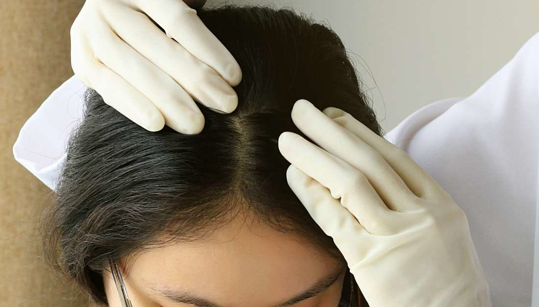Scalp acne: Treatment, causes, and prevention