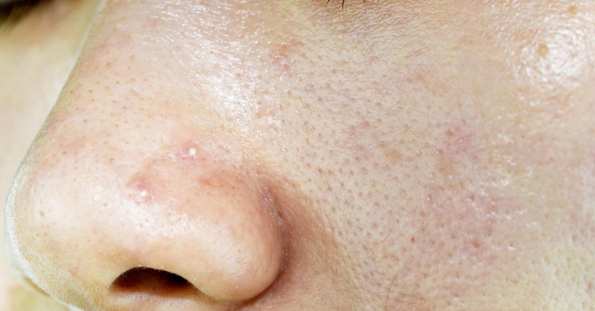 Oily Skin 6 Treatments Causes And Prevention