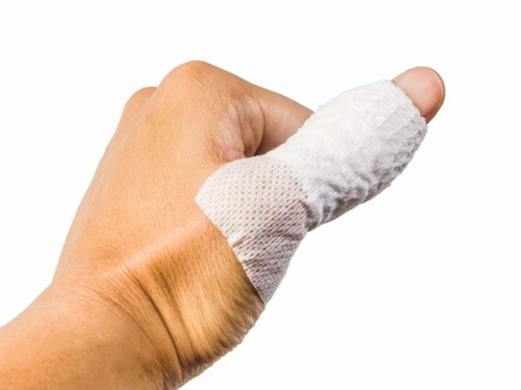 what+causes+pain+and+swelling+in+thumb+joint