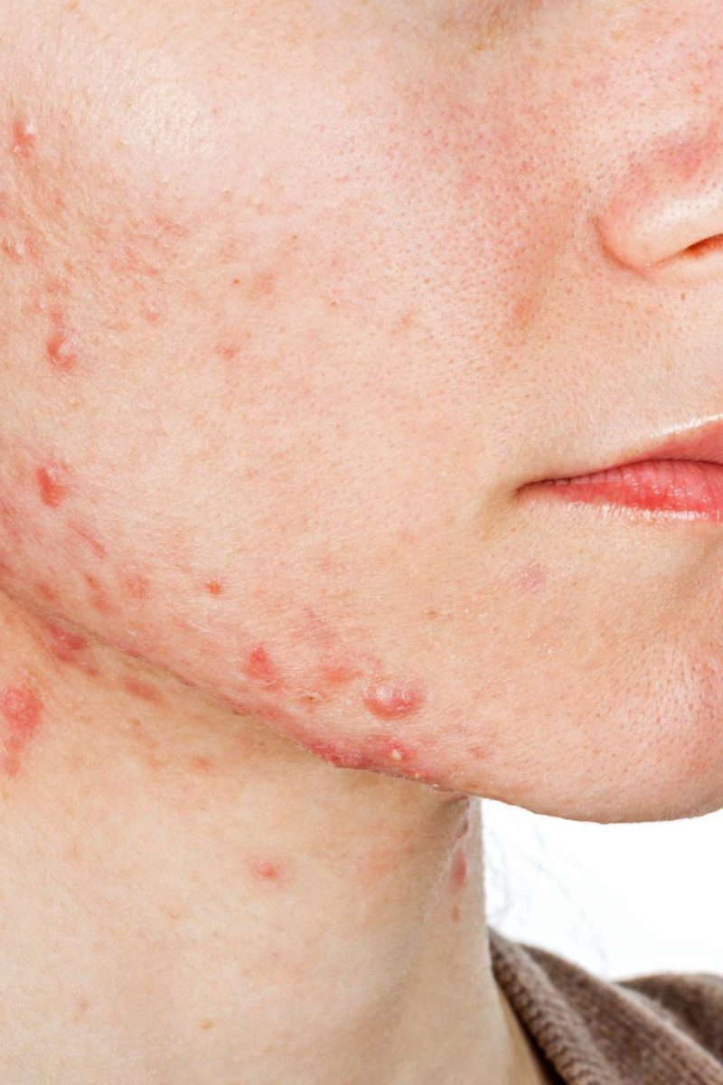 Jawline acne: Causes, treatment and prevention