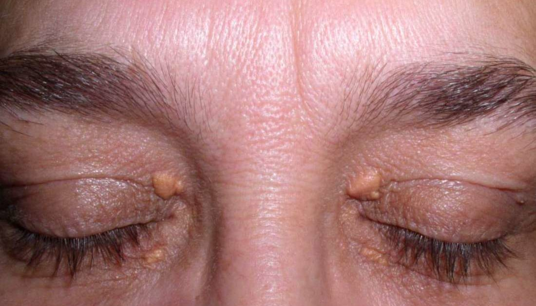 Cholesterol deposits in the eyes: Causes and how to get rid of them