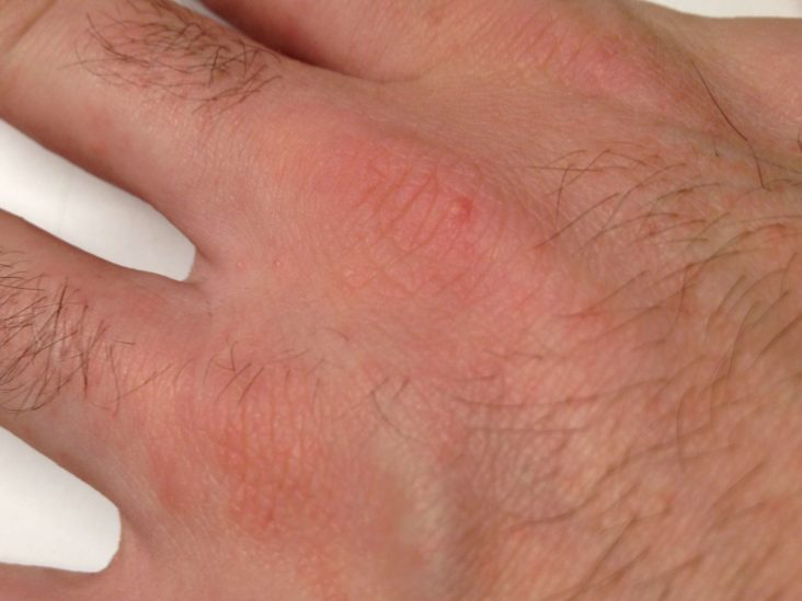 osperalycus tenerphagus in humans