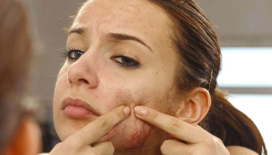 Infected Pimple Symptoms Diagnosis And Treatment