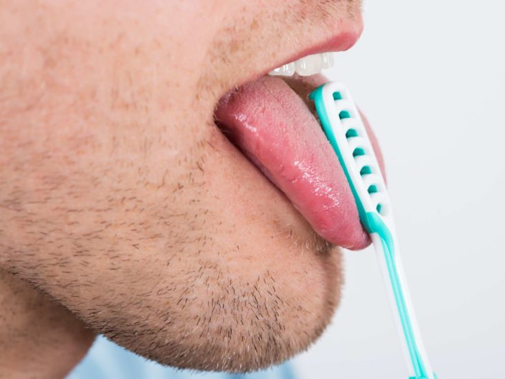 Tongue bumps: Causes, when to see a doctor, and treatment