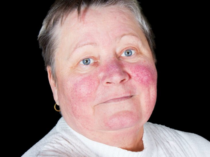 Rhinophyma Causes Pictures And Treatment