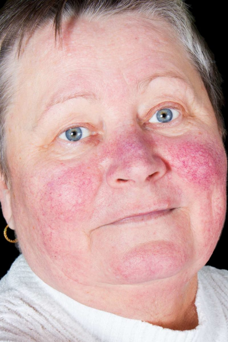Malar Rash Causes Symptoms And Treatment