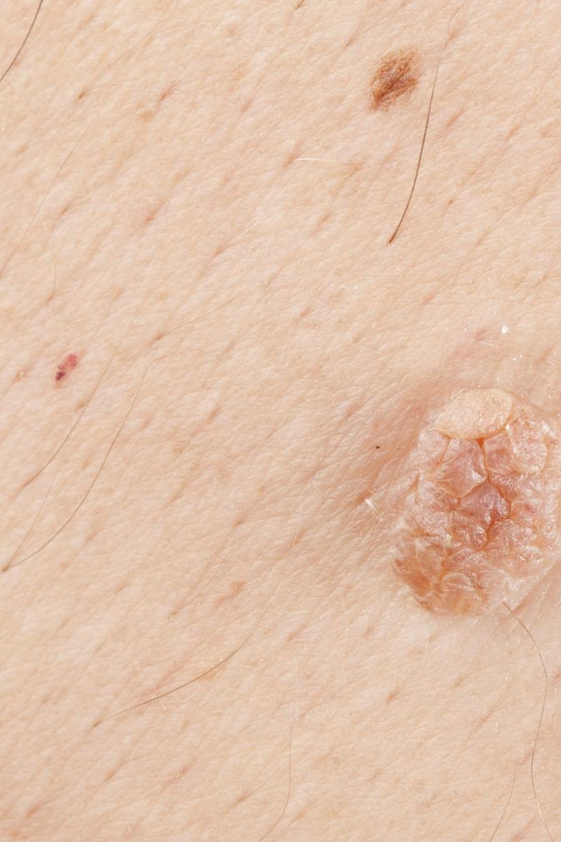 How To Get Rid Of Skin Tags 8 Natural Home Remedies