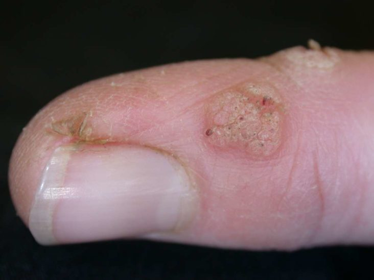 Plantar Warts Symptoms Causes And Treatment