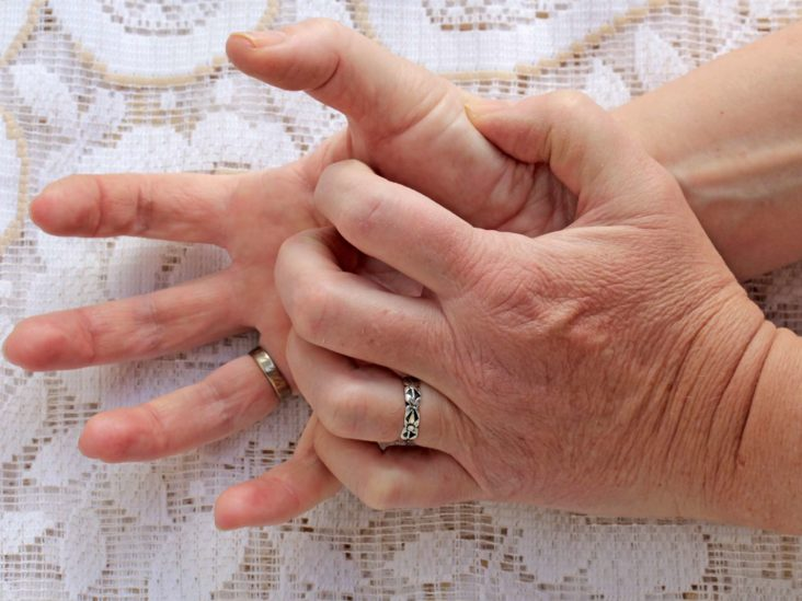 Itchy fingers: Symptoms, causes, and treatment
