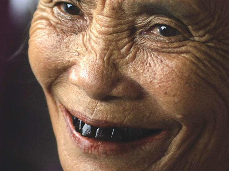 Bad teeth girl hot Would you
