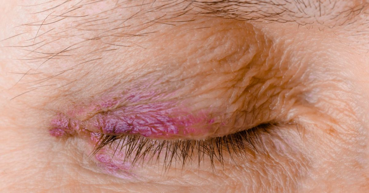 Ecchymosis Definition Causes And Treatment