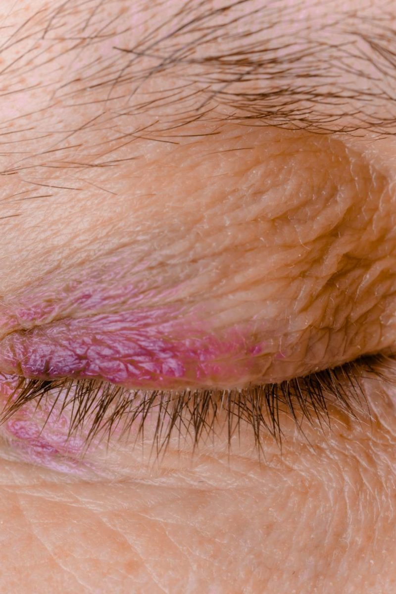 Ecchymosis: Definition, causes, and treatment