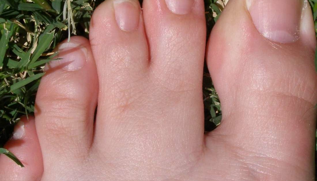 Naked girls keep touching toes Webbed Toes Causes Symptoms And Treatment