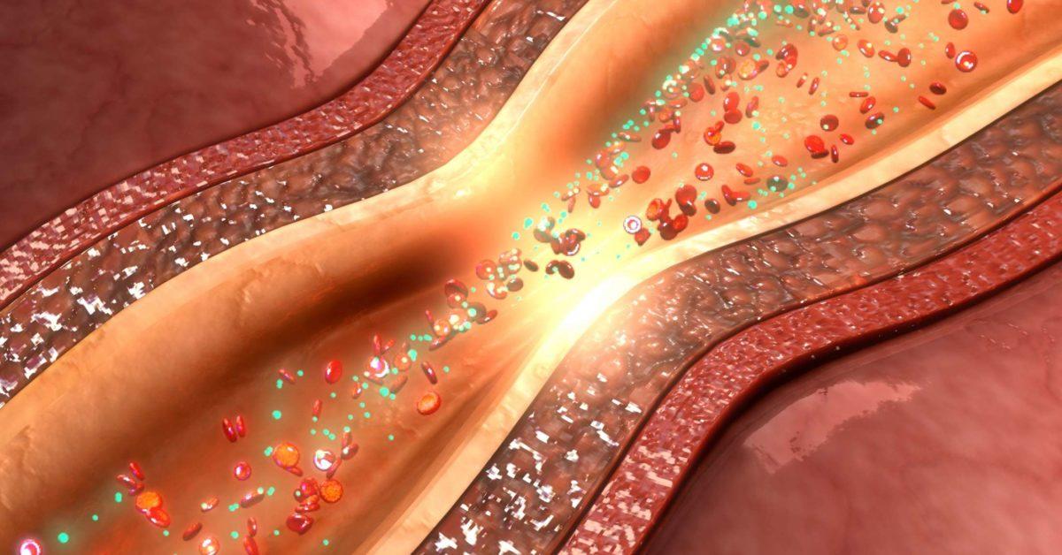 Coronary artery spasm: Causes, symptoms, and prognosis