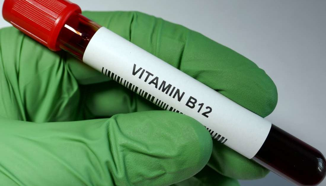 Vitamin B-12 level test: Uses, normal ranges, and results