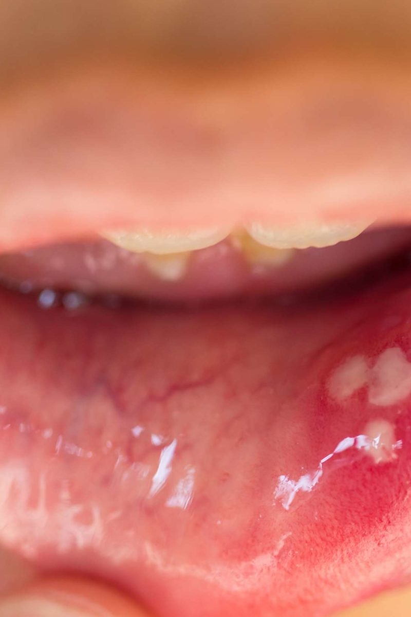 hpv growth in throat)